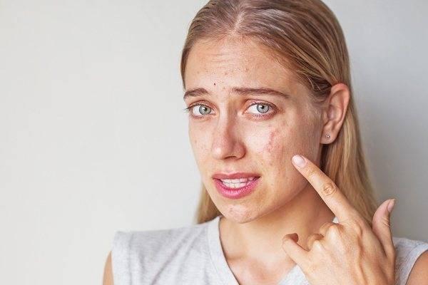 Прыщи на лице после родов