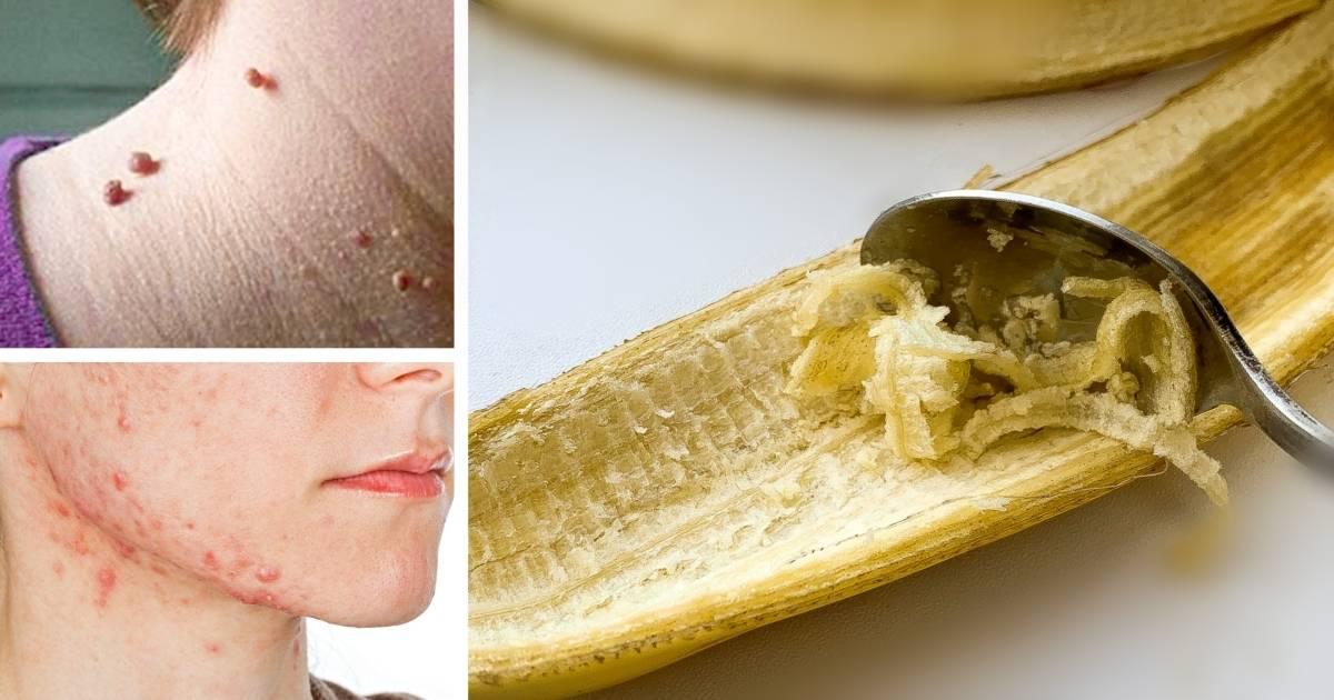 «коронавирусные» бананы, пластиковый рис ичай сядом: мифы оеде