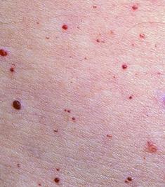 Красные точки на коже: как избавиться от пятнышек