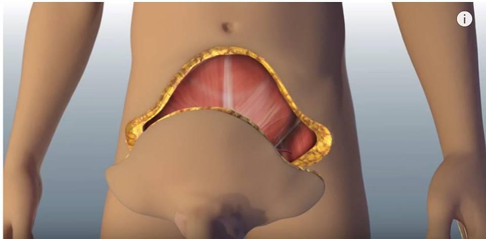 Стоимость операции по увеличению пениса? разновидности процедур их цены