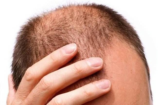 Причины очагового выпадения волос у мужчин и женщин, методы лечения заболевания