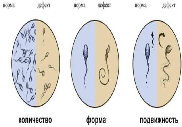 Что означает диагноз нормозооспермия?