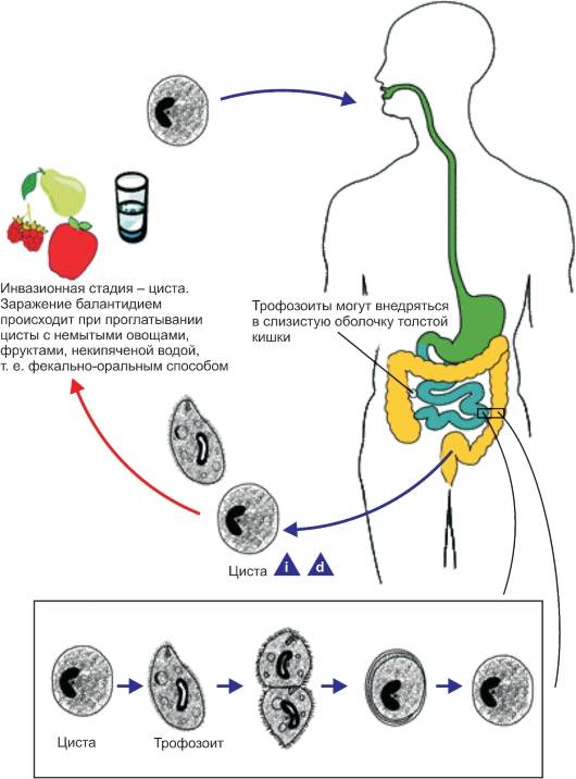 Что такое трихомониаз: разновидности, симптомы, диагностика, схемы лечения