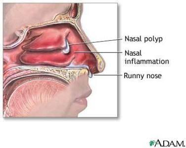 Папилломы в носу: причины, симптомы и опасность