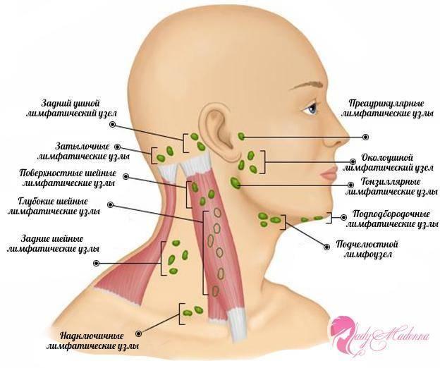 Причины и способы лечения пахового лимфаденита у мужчин