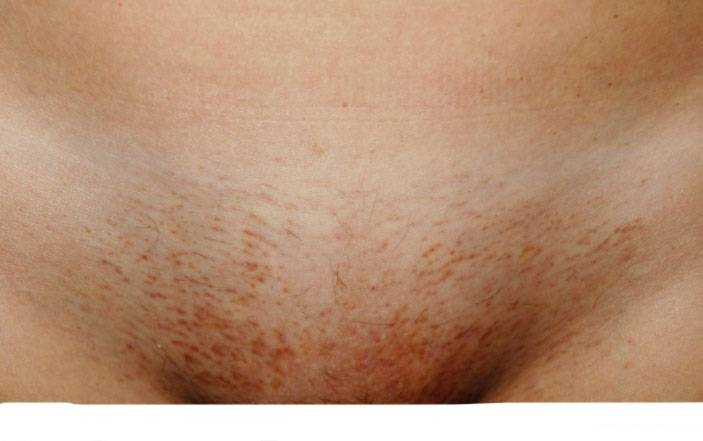 Зуд и шелушение в паху у женщин: фото, причины, лечение