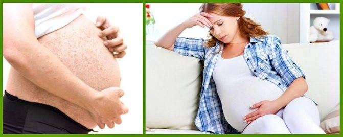 Простудные прыщи: причины, лечение, профилактика