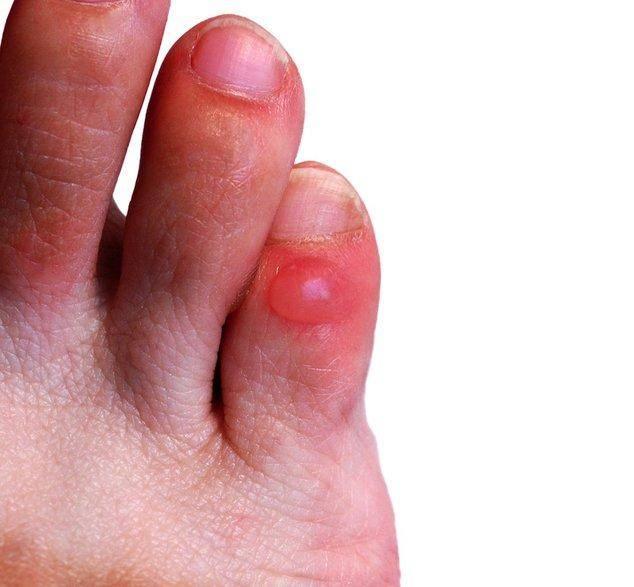 Как вылечить мозоль, которая образовалась между пальцами на ноге