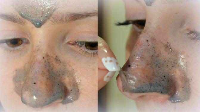 Угольная маска с активированным углем charcoal для лица: очищающая, защитная – 11 лучших рецептов