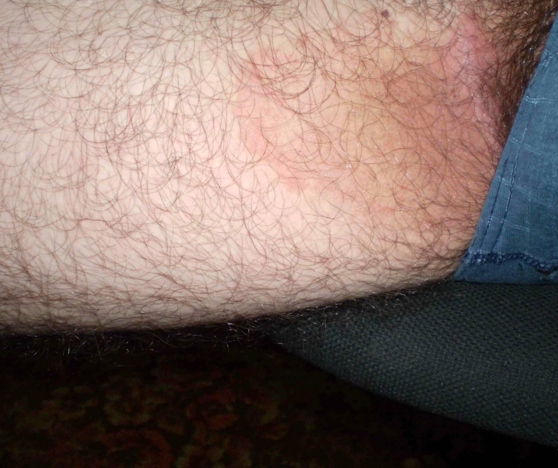 Пятна в паху: фото, возможные заболевания, симптомы