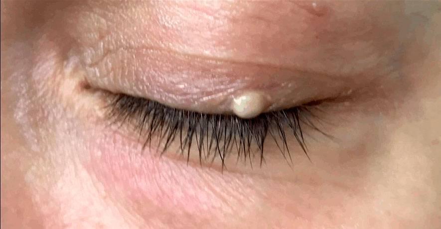 Милиумы на коже лица