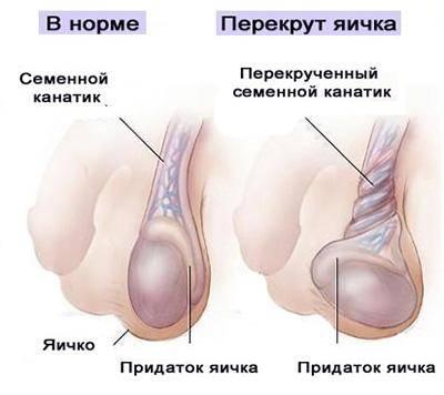 Основные причины, по которым болит левое яичко, и действия в этих случаях