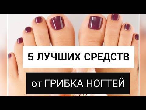 Список лечебных лаков от грибка ногтей на ногах, отзывы
