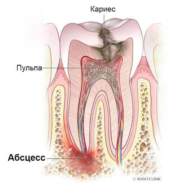 Симптомы и лечение абсцессов