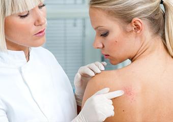 Лечение фолликулита и профилактика заболевания