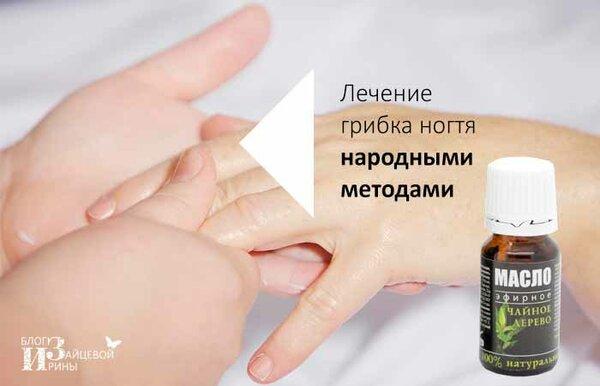 Симптомы и лечение грибка ногтей на руках (онихомикоза)