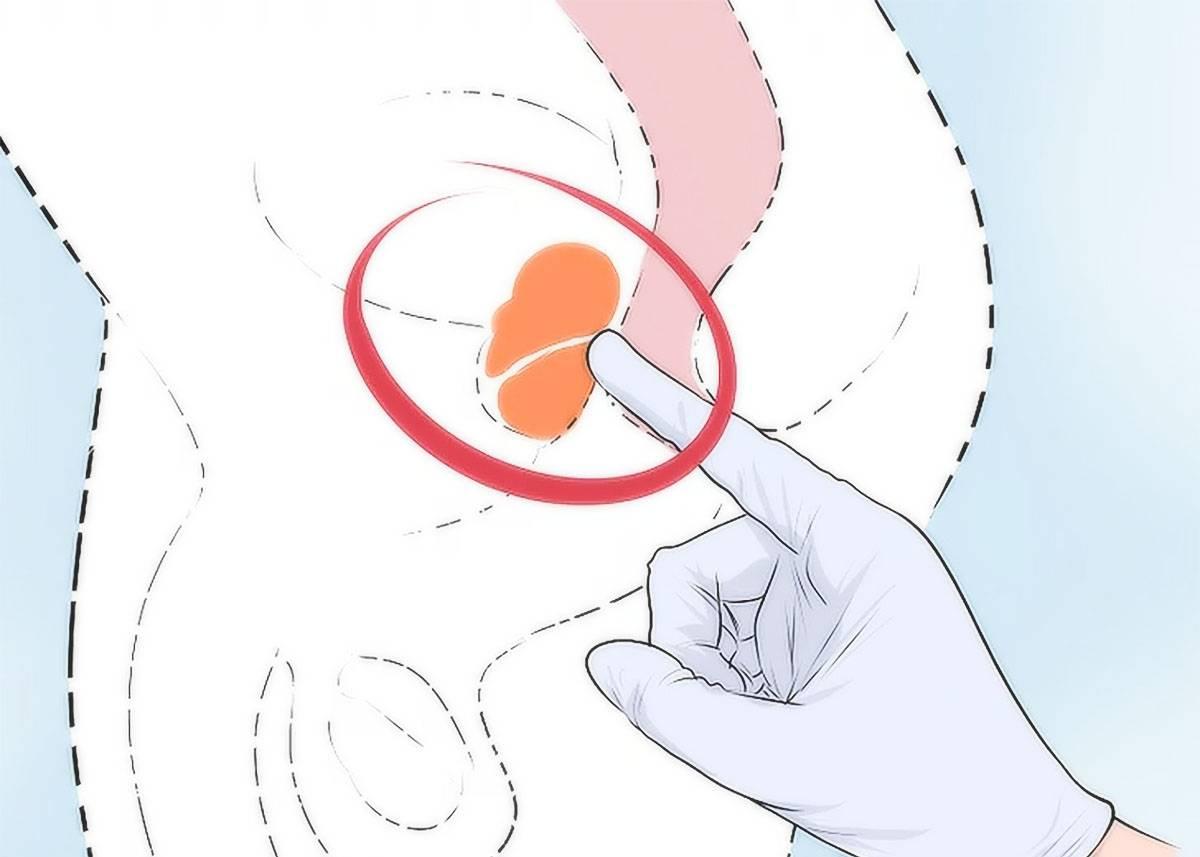 Как делают пальпацию простаты ректально