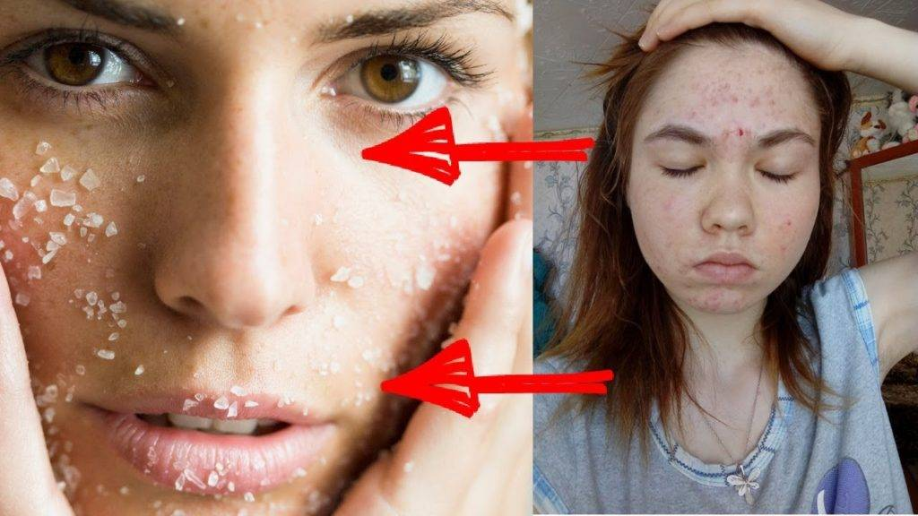 Морская соль для лица, рецепты солевых масок и скрабов