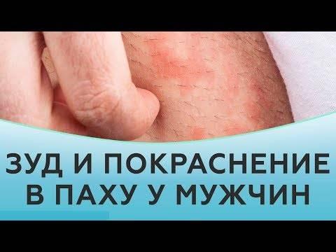 Что делать, если у мужчины появились зуд и шелушение в паху?