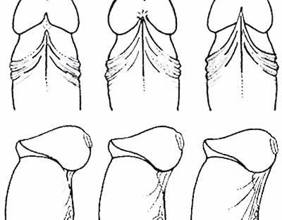 Воспаление на уздечке головки