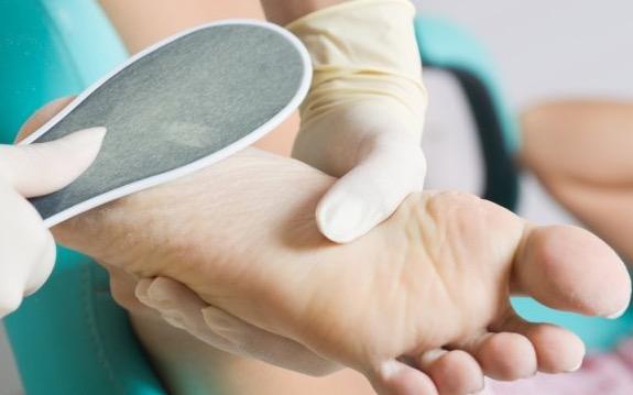Трещины на пятках - лечение, в том числе народные средства, применяемые в домашних условиях