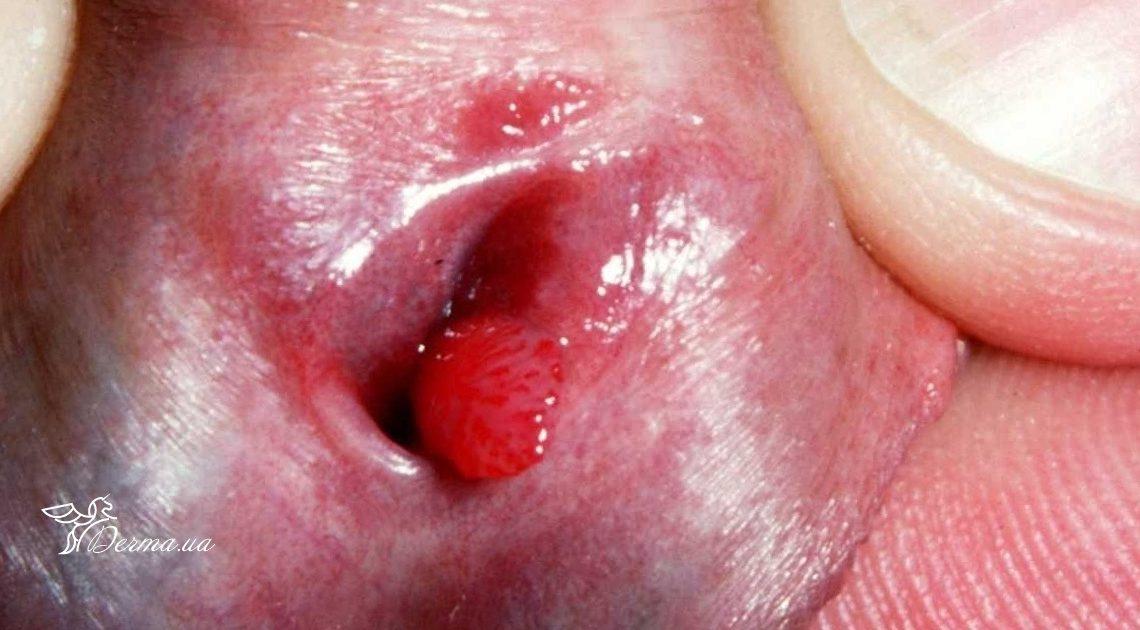 Кондиломы - виды, причины, диагностика, лечение, удаление и профилактика