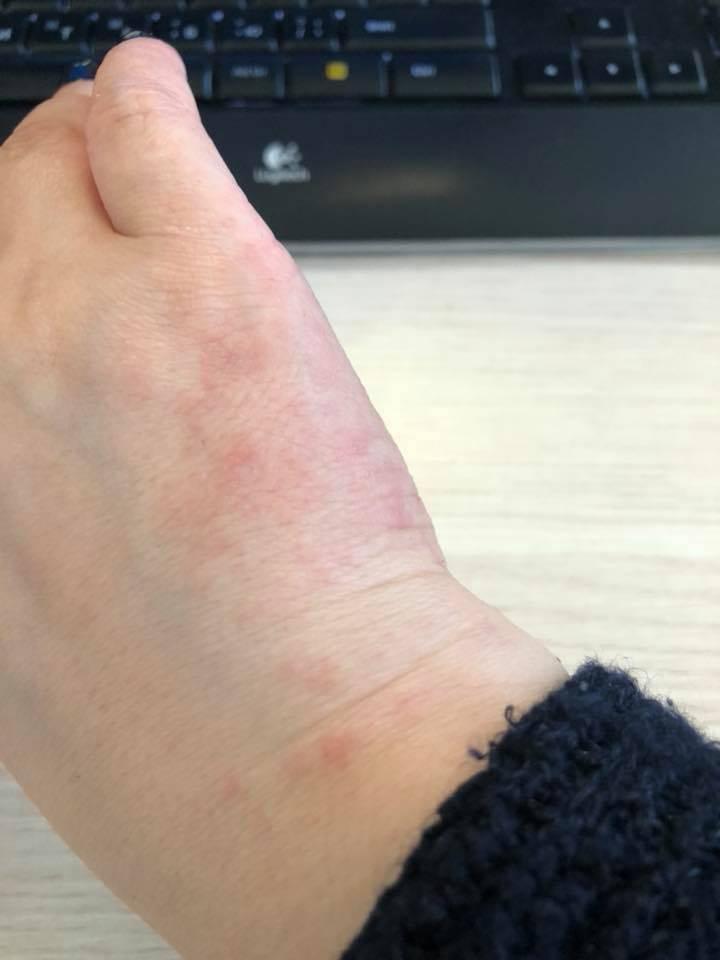От чего появляется акне на руках и ногах, как лечить сыпь?