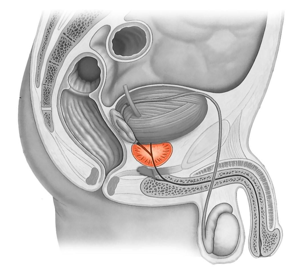 Симптомы и способы лечения кисты предстательной железы у мужчин