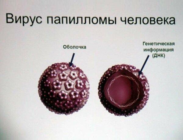 Папилломы на лобке у мужчин