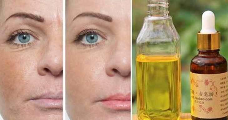 Касторовое масло: способы применения, польза и вред
