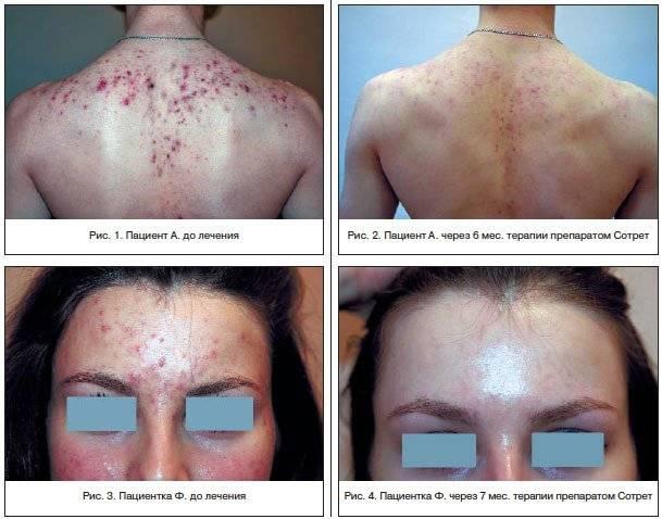 Лечение акне. ретиноиды
