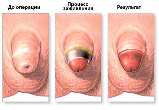 Ампутация шейки матки, или манчестерская операция в гинекологии – показания, этапы выполнения и прогноз
