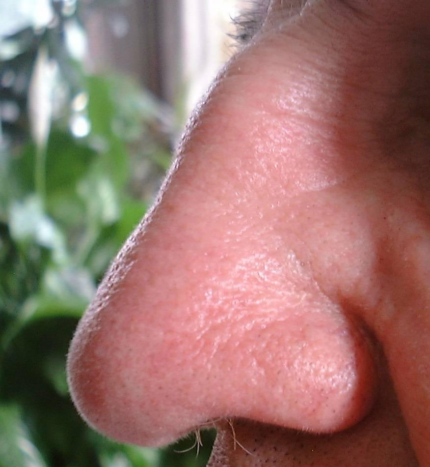 Фурункул в носу — лечение, причины, симптомы, профилактика