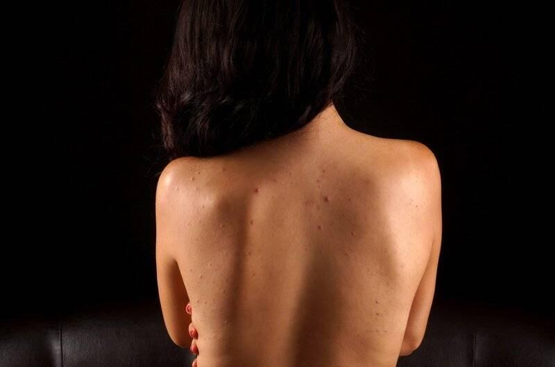 Причины появления прыщей на спине, плечах, груди