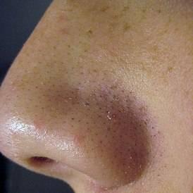 Белые точки на головке у мужчин: фото, причины, удаление