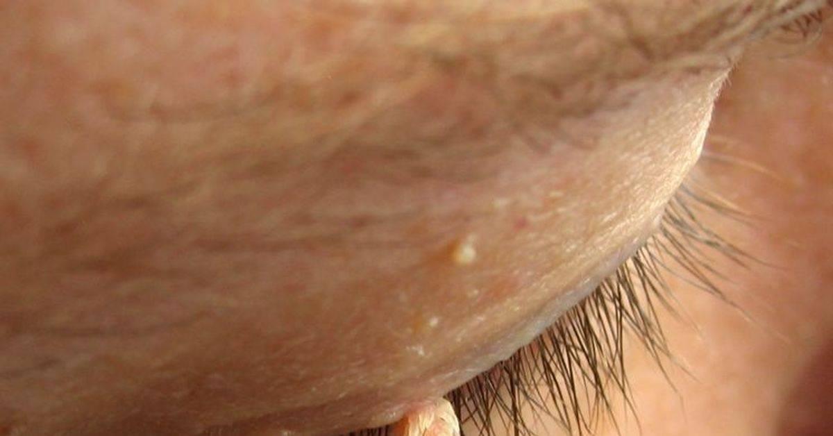 Профилактика инфекций, передающихся половым путем: до, во время и после…