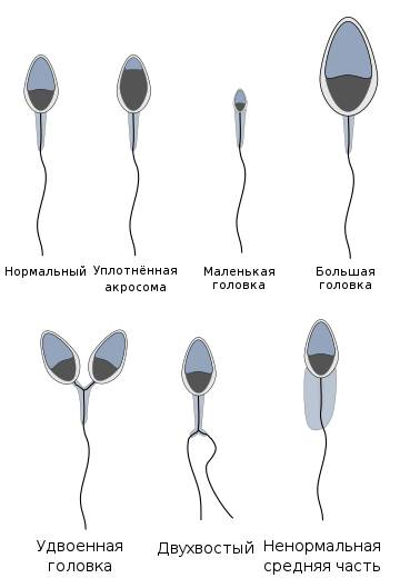 Как правильно расшифровать показатели спермограммы