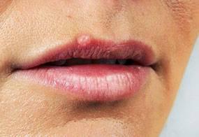 Можно ли удалить папиллому на губах