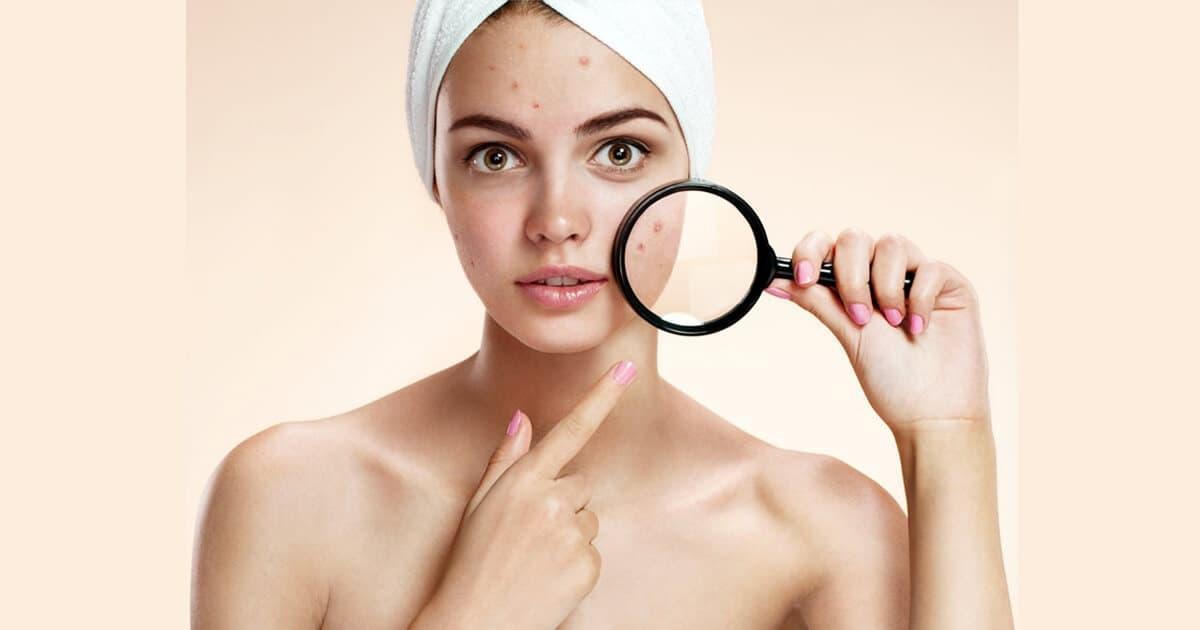 Прыщи после бритья на лице