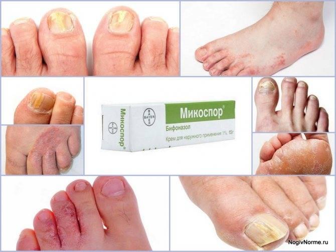 Микодерил против грибка ногтей