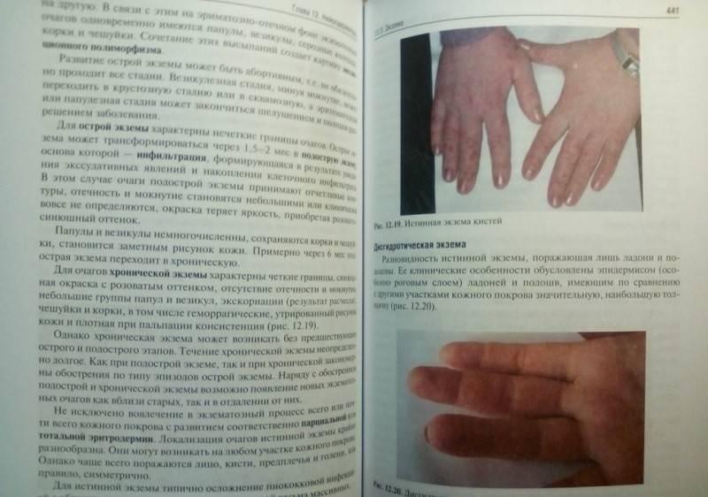 Папилломы на руках (пальцах и ладонях) — 5 способов удаления