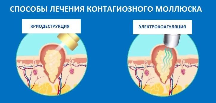 Контагиозный моллюск – фото, причины и симптомы (у детей, у взрослых), диагностика и лечение. методы удаления контагиозного моллюска на коже лица, на веке, на половых органах и т.д.