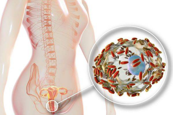 Гарднерелла вагиналис при беременности – влияние на зачатие и бесплодие, чем опасна, лечение, последствия