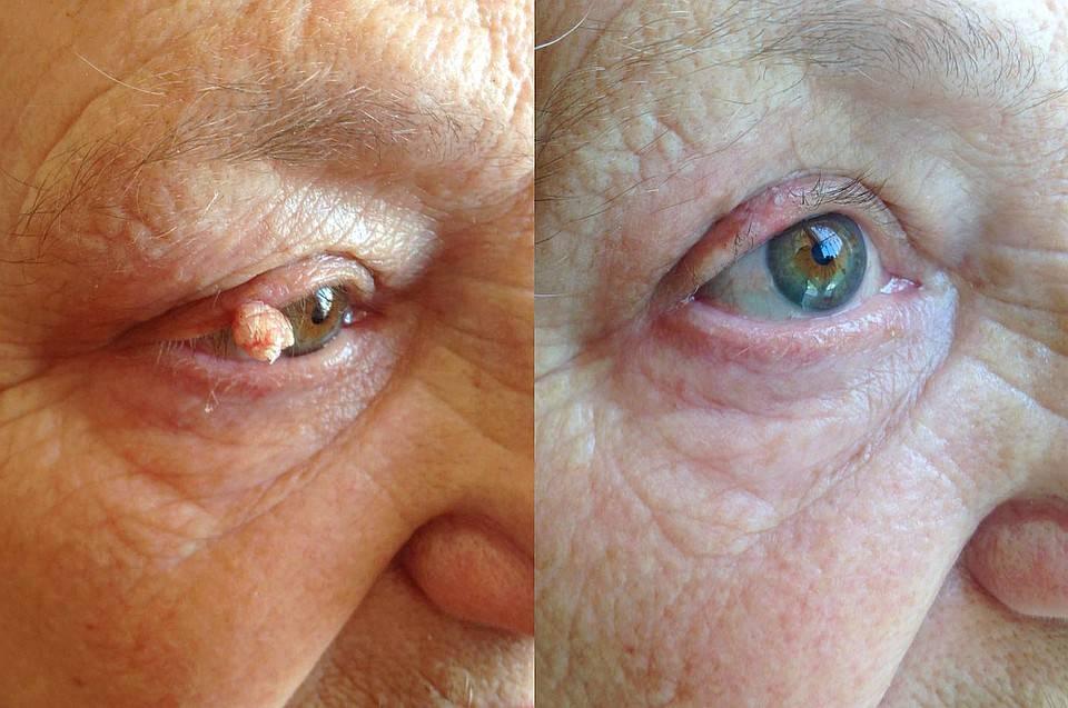 Папиллома на веке глаза – удаление и лечение наростов и милиумов