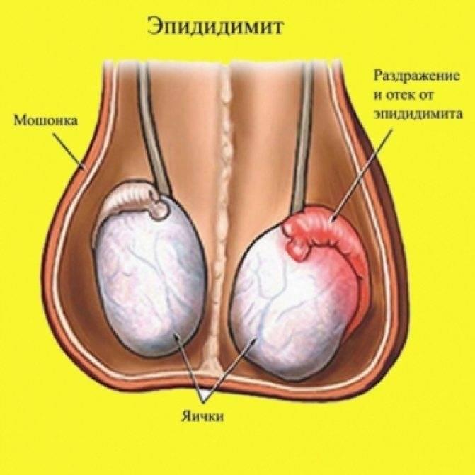Что это такое гонорея у мужчин: симптомы и лечение
