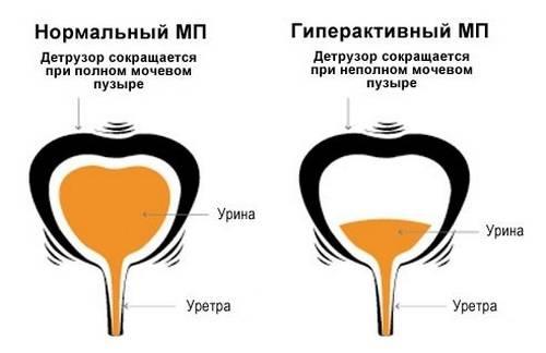 Кажется что постоянно полный мочевой пузырь. возможные причины и пути лечения постоянных ощущений полного мочевого пузыря