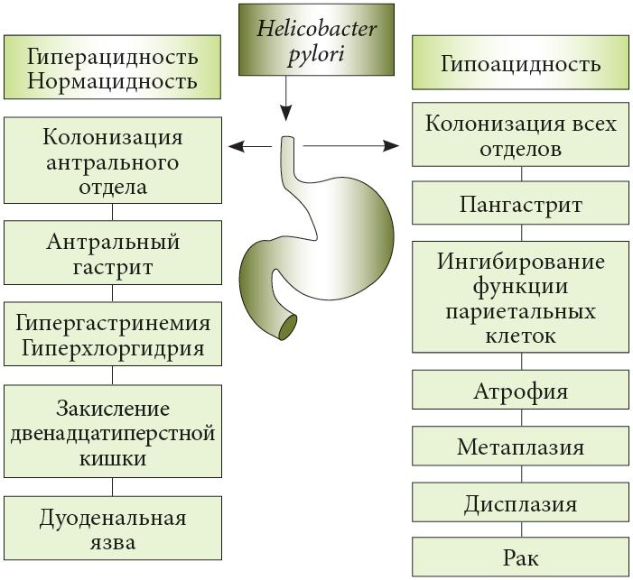 10 мощных растительных средств от инфекции хеликобактер пилори