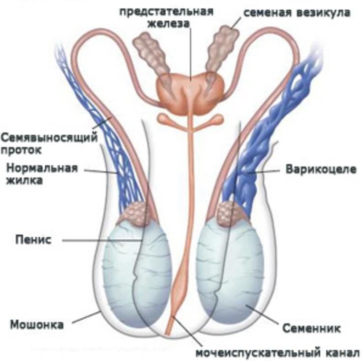 Методы лечения варикоцеле без операций