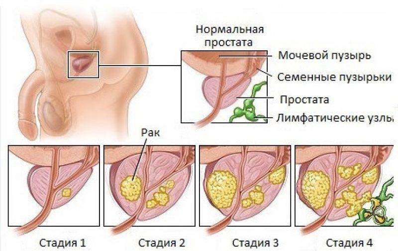 Сколько живут с раком 2 степени, каким должно быть лечение?