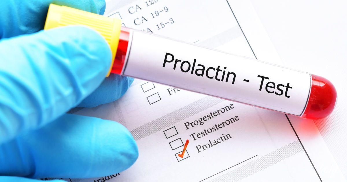 Как снизить пролактин, как лечить и когда не стоит его снижать
